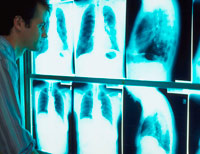 Technician reviews x-rays